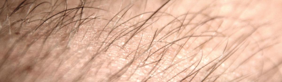Qual a melhor técnica para acabar com os pelos?