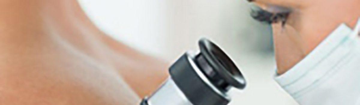 Estudo visa tratar melanoma com Terapia Fotodinâmica