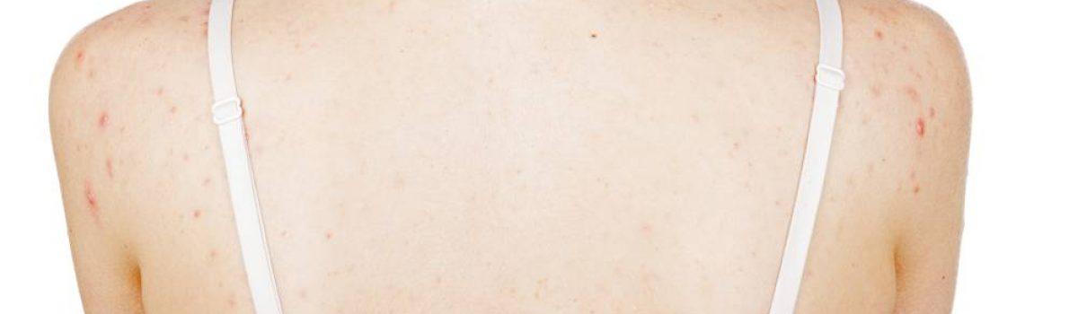 Acne nas costas pode ser causada por resíduo do condicionador de cabelo