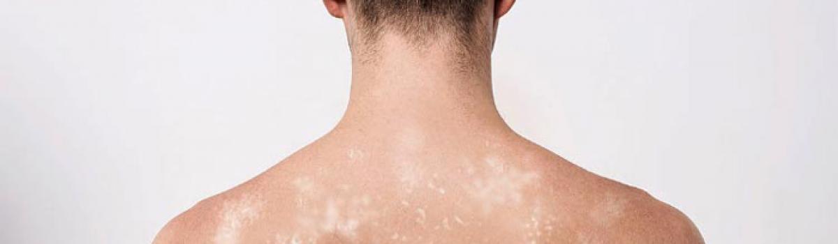 Brasil tem índice alto de doenças infecciosas e endêmicas