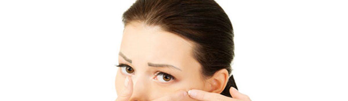 Acne na idade adulta: causas e como prevenir